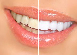 teethwhiteningdental