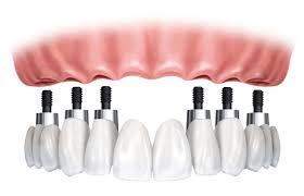 implant-denture