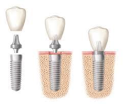 implantstages