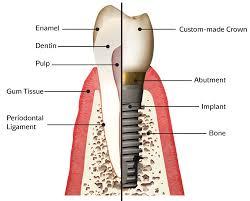 implanttooth